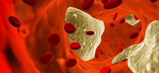 опасность холестерина: в чём она выражается?