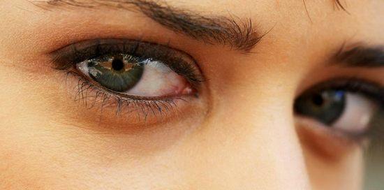 Как убрать отеки под глазами и каким образом они появляются?