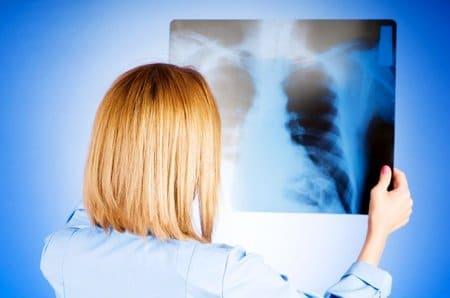 Какой должна быть диета при туберкулезе легких? диета при туберкулезе легких