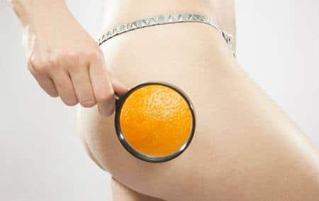 Целлюлит или причины отложения жира у женщин отложение жира у женщин