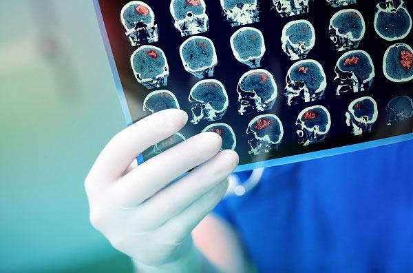 Обследование у невролога Неврология - понятно о сложном