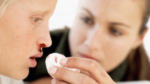 Кровотечение из носа у детей. Как действовать маме?