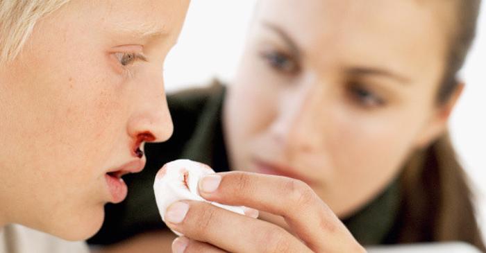 Кровотечение из носа у детей. Как действовать маме? Кровотечение из носа у детей. Как действовать маме?