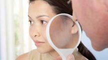 Отзывы о лечении рака кожи в Израиле